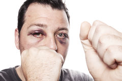 Black eye injury boxer violence isolated. Eye injury, male boxer with black eye isolated on white. man after fight with bruise stock photos