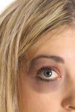 Black eye upclose. Isolated on white royalty free stock photos