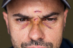 Black eyes of a injured man. Face of an injured man with wounds and black eyes. Soft focus royalty free stock photo