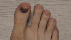Black fingernail, nail trauma, male leg, close-up. Hematoma stock footage
