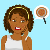 Black girl with pimples. Dark skinned girl upset about pimples on her face Stock Photo
