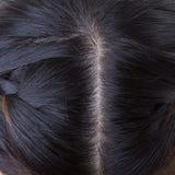 Black hair with dandruff on head Stock Photo