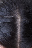 Black hair with dandruff on head stock images