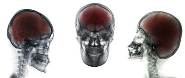 Black skull. X-ray on dark background stock photography