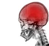 Black skull. X-ray on dark background stock photos