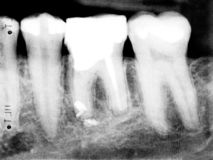 Black teeth. X-rax picture of some teeth Royalty Free Stock Photography
