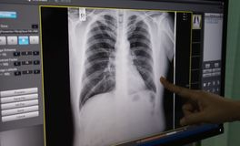 Black and white body , rib ,lung , heart , film X-ray stock photo