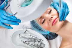 Blackhead cleansing on female face Stock Photo