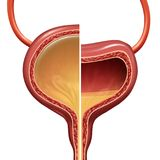 Bladder Normal And Overactive Condition. Bladder as a normal and overactive urinary organ comparison representing the involuntary loss of urine concept as a stock illustration