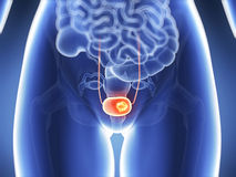 Bladder cancer Royalty Free Stock Images
