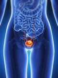 Bladder cancer Royalty Free Stock Image