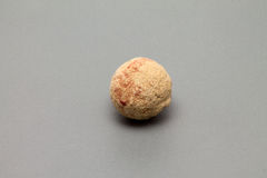 Bladder stone Royalty Free Stock Photography
