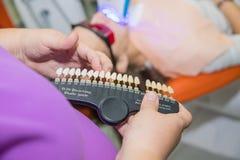 Blancheur d'essai des dents d'un patient Dents saines blanchissant Concept de soins dentaires Ensemble d'implants avec divers photo libre de droits