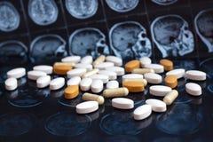 Blandade färgrika farmaceutiska medicinpiller och minnestavlor på bakgrund för magnetiskt huvud och för hjärnresonansbildläsning  royaltyfri foto