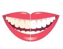 Blanquear los dientes Imagen de archivo