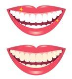 Blanquear los dientes Imágenes de archivo libres de regalías