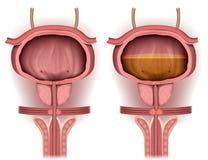 Blase leer und mit medizinischer Illustration des Urins 3d gefüllt stock abbildung