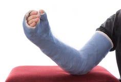Blauwe lange gegoten wapenpleister/glasvezel het rusten op ottomane Stock Foto's