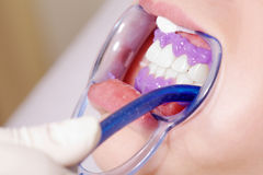 Bleaching close up. Close up at the dentist bleaching Royalty Free Stock Photo