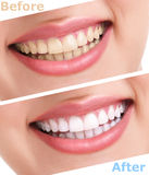 Bleaching teeth treatment. Close up, isolated on white, before and after Royalty Free Stock Image