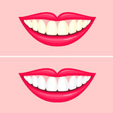 Bleaching teeth treatment. Whiten teeth before and after. Vector illustration isolated on pink background. Dental care concept Royalty Free Stock Photography