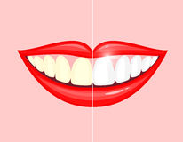 Bleaching teeth treatment. Royalty Free Stock Photos