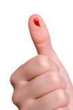 Bleed Stock Image
