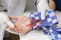 Bleeding cut Royalty Free Stock Image