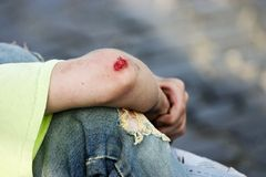 Bleeding Elbow royalty free stock images
