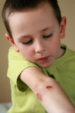 Bleeding injured boy. Boy holding his bleeding elbow Stock Photo