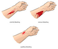 Bleeding. Vector illustration of different types of bleeding Stock Photo