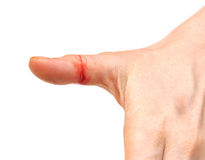Bleeding wound Stock Photo