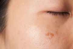 Blemish and spots Royalty Free Stock Photos