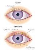 Blepharitis vektor abbildung