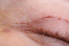 Blepharoplasty верхнего века стоковое фото