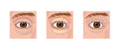 Blepharoplasty Foto de Stock Royalty Free