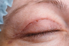 Blepharoplasty des oberen Augenlides Lizenzfreies Stockbild