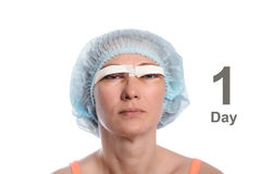 Blepharoplasty des oberen Augenlides Stockbild