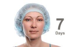 Blepharoplasty des oberen Augenlides Stockfotos