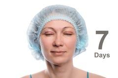 Blepharoplasty of the upper eyelid. Stock Images