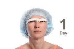 Blepharoplasty of the upper eyelid. stock image