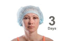 Blepharoplasty of the upper eyelid. royalty free stock image