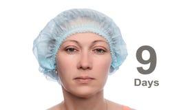 Blepharoplasty of the upper eyelid. Royalty Free Stock Photography