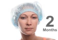 Blepharoplasty of the upper eyelid. royalty free stock images