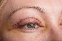 Blepharoplasty of the upper eyelid. Royalty Free Stock Photography