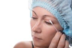 Blepharoplasty of the upper eyelid. Royalty Free Stock Photos