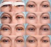 Blepharoplasty of the upper eyelid. royalty free stock photo