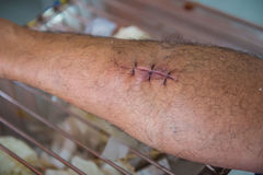 Blessez les sutures dans les jambes des patients dans l'hôpital images stock