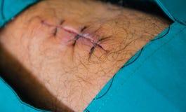 Blessez les sutures dans les jambes des patients dans l'hôpital photographie stock libre de droits
