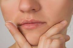 Blessure d'herpès avec le pus sur les lèvres de la jeune belle fille et Photos stock